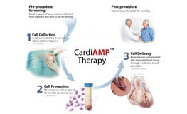 CardiAMP Therapy