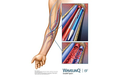 WavelinQ non-surgical dialysis
