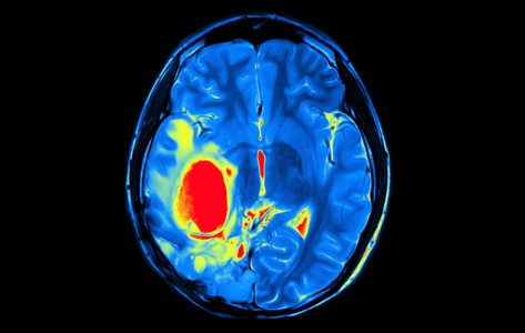 Brain cancer imaging