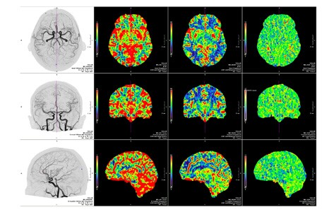 computed tomography angiography scans of brain