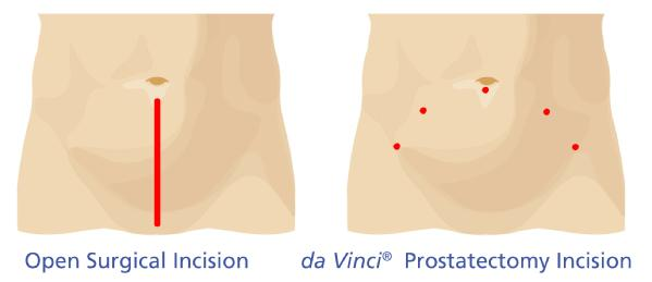 3_Incision_Comparison_Prostatectomy_gl600w.jpg